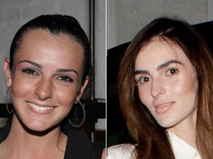 What happened to Ali Lohan's face? Fresh Cheeks